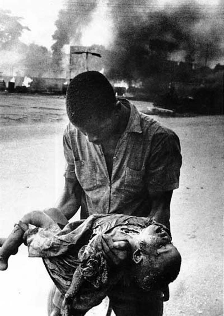 Biafran Casualty in the Nigerian Civil War